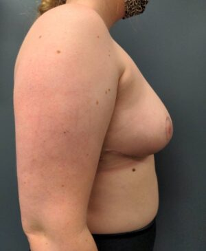 Breast Reduction Gallery 4