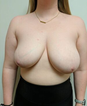 Breast Reduction Gallery 1