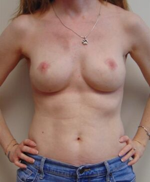 Breast Reconstruction Gallery 15