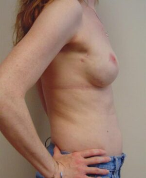 Breast Reconstruction Gallery 14
