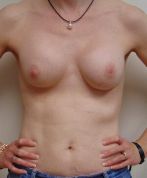 Breast Reconstruction Gallery 13