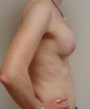 Breast Reconstruction Gallery 12