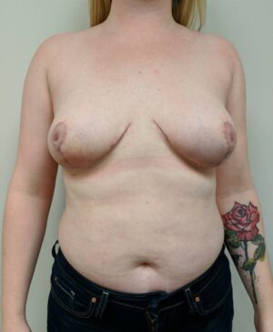 Breast Reduction Gallery 12