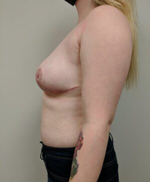 Breast Reduction Gallery 11
