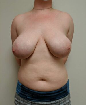 Breast Reduction Gallery 10
