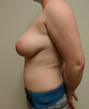 Breast Reduction Gallery 9