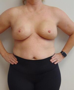 Breast Reconstruction Gallery 11