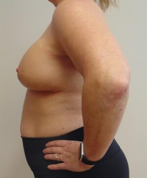 Breast Reconstruction Gallery 10