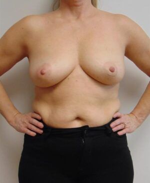 Breast Reconstruction Gallery 9