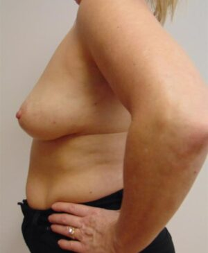 Breast Reconstruction Gallery 8