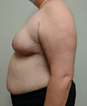 Breast Reduction Gallery 7