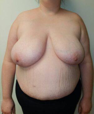 Breast Reduction Gallery 6