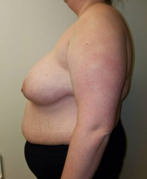 Breast Reduction Gallery 5