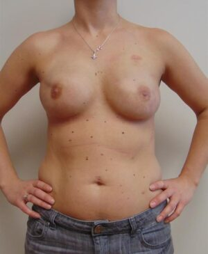 Breast Reconstruction Gallery 7