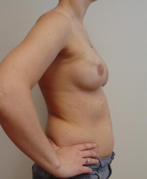 Breast Reconstruction Gallery 6