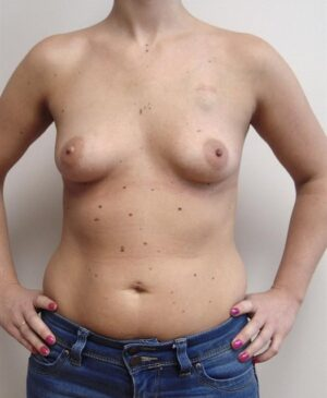 Breast Reconstruction Gallery 5