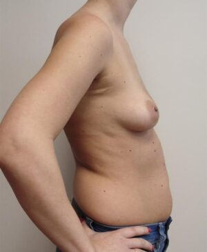 Breast Reconstruction Gallery 4