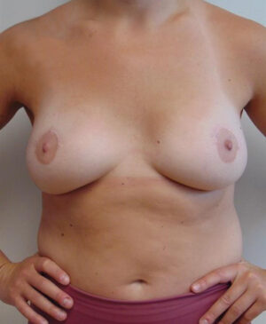 Breast Reconstruction Gallery 3
