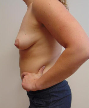 Breast Reconstruction Gallery